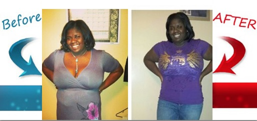 Kyla Page before-after