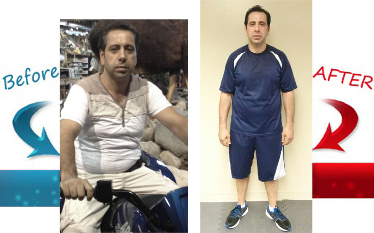 Mike Before-After